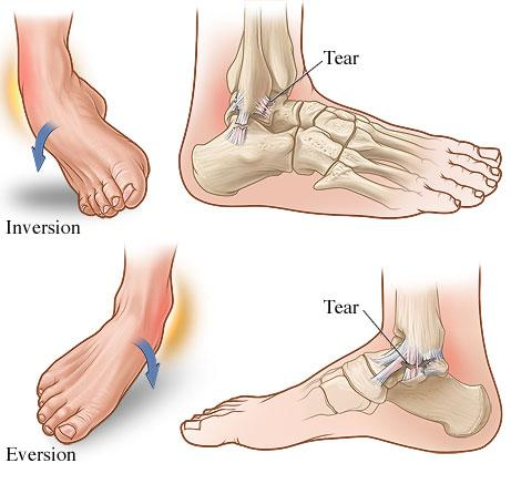 Ankle sprain, inversion sprain, eversion sprain, Fairview Physiotherapy and Rehabilitation Centre, physio, chiro, chiropractor, acupuncture, massage therapy, RT, registered therapist, osteopathy , osteo, rehab, recovery, physical therapy